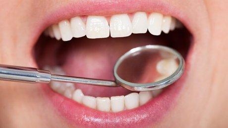 ۷ ترفند ساده برای درمان حساسیت دندانی