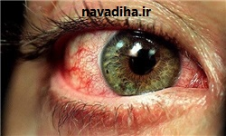 آنچه در مورد آلرژیهای چشمی باید بدانید