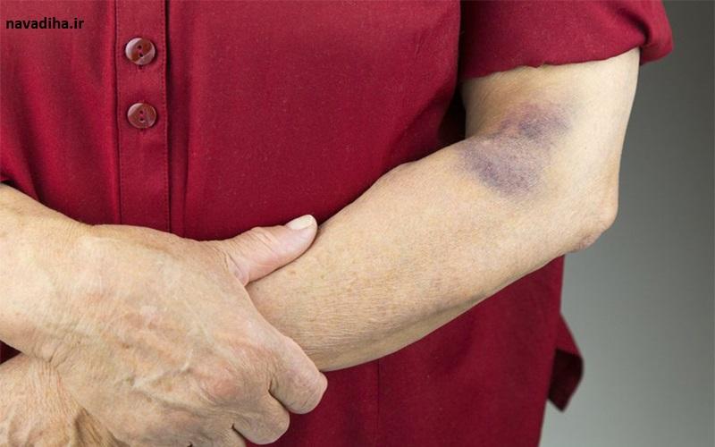 چرا پوستمان به راحتی دچار کبودی میشود