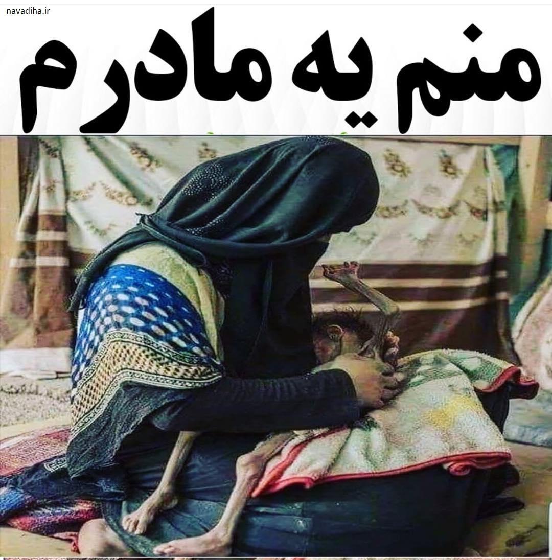کشتار کودکان یمن